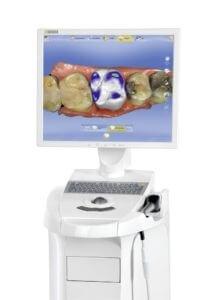 Sirona Cerec CAD/CAM hammaste kroonimiseks