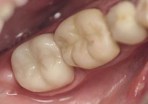 Permanent dental crown placement