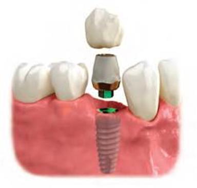 Implantaat