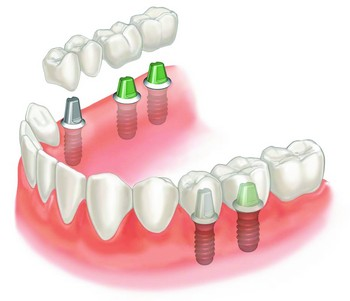 Placing implants in your jawbone