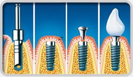 Установка зубного имплантата