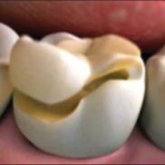 Onlay keraamiline hambatäidis