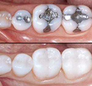Täiskeraamilised hambakroonid