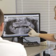 Зубныйе имплантаты