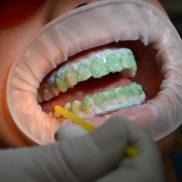 Gel-covered teeth