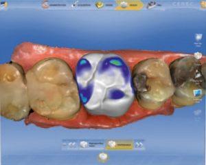 3D модель зуба