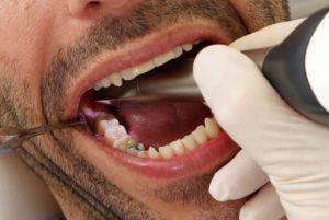 Сканирование полости рта пациента