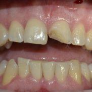 Katkine hammas korda ühe päevaga