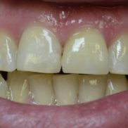 Tumenenud hambad